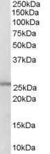Western blot - GSTM1 + GSTM2 antibody (ab27489)