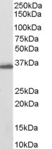 Western blot - AKR1C3 antibody (ab27491)