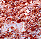 Immunohistochemistry (Formalin-fixed paraffin-embedded sections) - Calcitonin antibody [SP17], prediluted (ab27606)