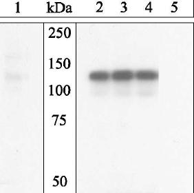 Western blot - VE Cadherin (phospho Y658) antibody (ab27775)
