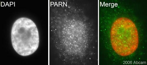 Immunocytochemistry/ Immunofluorescence - PARN antibody (ab27778)