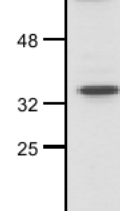 Western blot - Anti-Wnt2  antibody (ab27794)