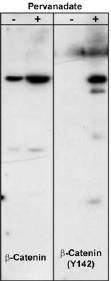 Western blot - beta Catenin (phospho Y142) antibody (ab27798)