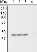 Western blot - Protein phosphatase 1 inhibitor subunit 2 (phospho T72) antibody (ab27850)