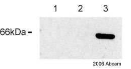 Western blot - ARFGAP3 antibody (ab27959)
