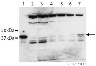 Western blot - Anti-Rex1 antibody (ab28141)