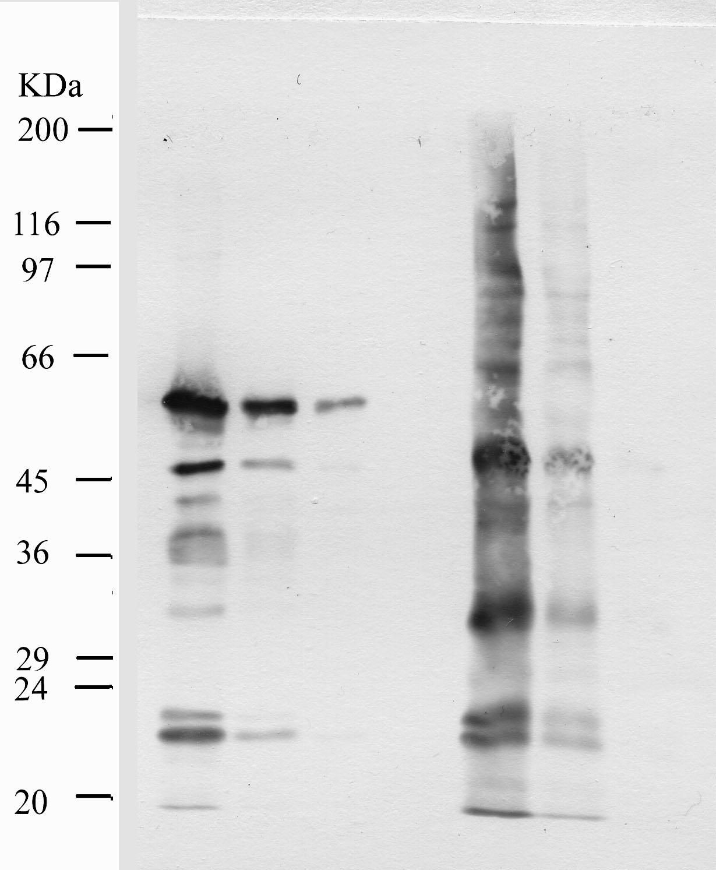 Western blot - MMP10 antibody - Hemopexin domain (ab28206)
