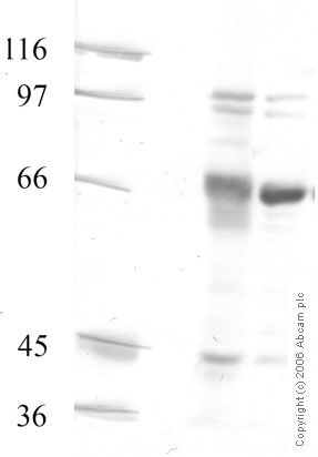 Western blot - ADAM20 antibody - Catalytic domain (ab28295)