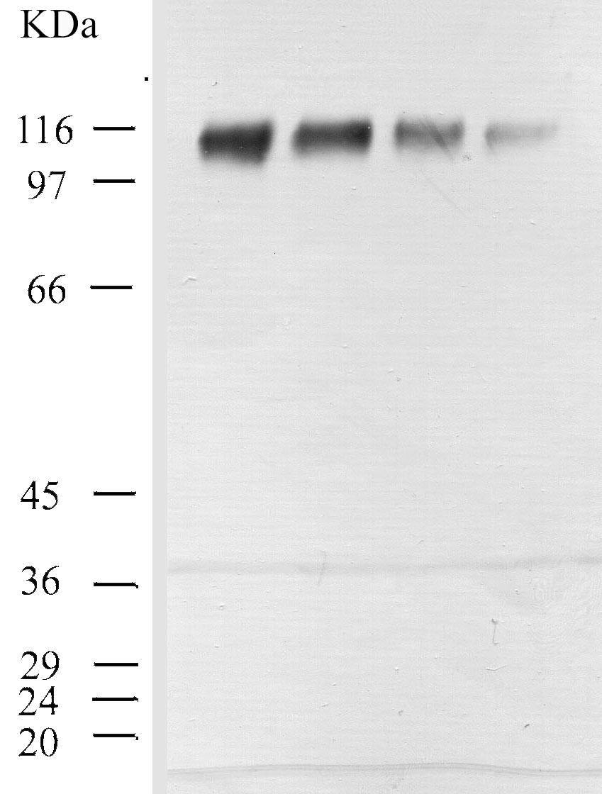 Western blot - CD26 antibody - Spacer region (ab28340)