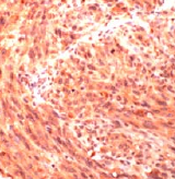 Immunohistochemistry (Formalin-fixed paraffin-embedded sections) - CD146 antibody (ab28360)