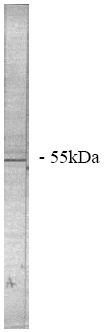Western blot - PPP2R2A antibody (ab28370)