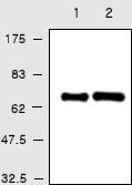 Western blot - Human Serum Albumin antibody [1G2] (ab28405)
