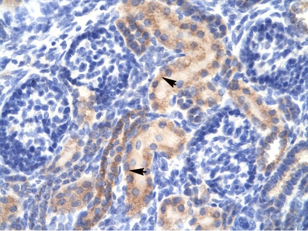 Immunohistochemistry (Formalin/PFA-fixed paraffin-embedded sections) - Anti-PCK1 antibody (ab28455)