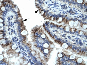Immunohistochemistry (Formalin-fixed paraffin-embedded sections) - Cytokeratin 15 antibody (ab28476)