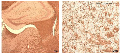 Immunohistochemistry (Paraffin-embedded sections) - Myelin PLP antibody (ab28486)