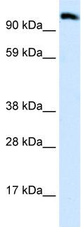 Western blot - EEA1 antibody (ab28503)