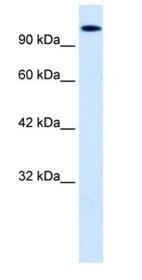 Western blot - HIPK2 antibody (ab28507)