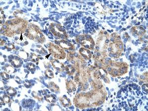 Immunohistochemistry (Paraffin-embedded sections) - CGI 62 antibody (ab28521)