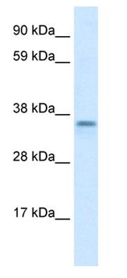 Western blot - CGI 62 antibody (ab28521)