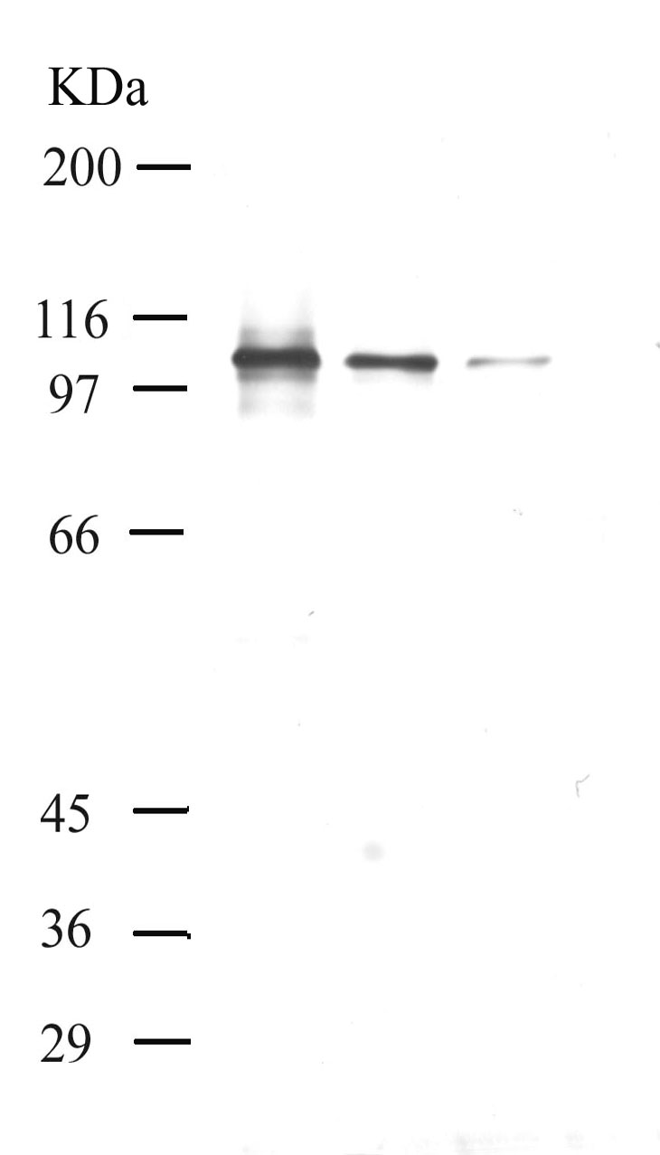 Western blot - Insulin degrading enzyme / IDE antibody - Inactive domain (ab28561)