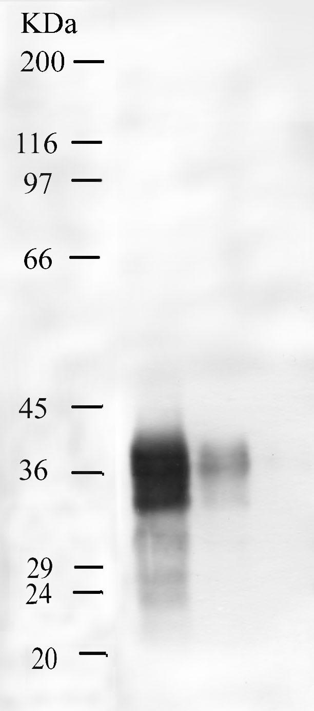Western blot - Kallikrein 5 antibody - Kallikrein loop (ab28565)