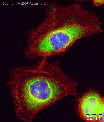 Immunocytochemistry/ Immunofluorescence - Dcp2 antibody (ab28658)