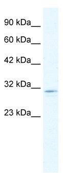 Western blot - CLIC2 antibody (ab28694)