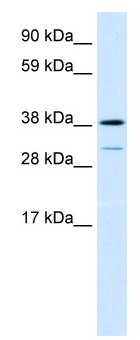Western blot - YL1 antibody (ab28708)