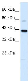 Western blot - KCNK13 antibody (ab28721)