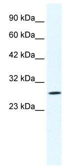 Western blot - CLIC1 antibody (ab28722)