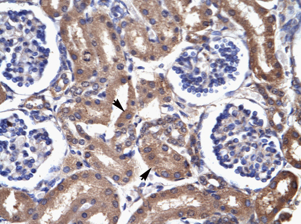 Immunohistochemistry (Formalin/PFA-fixed paraffin-embedded sections) - Anti-Cardiac FABP antibody (ab28723)