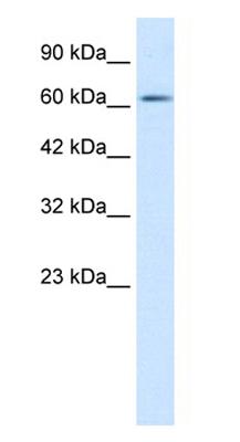 Western blot - FLJ12644 antibody (ab28728)