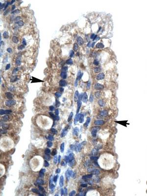 Immunohistochemistry (Paraffin-embedded sections) - LHX9 antibody (ab28737)