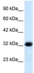 Western blot - HS747E2A antibody (ab28738)