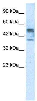 Western blot - Carbohydrate sulfotransferase 4 antibody (ab28742)