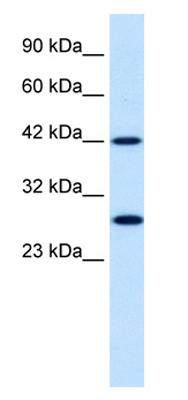 Western blot - Rpn10 /  DS5a antibody (ab28776)