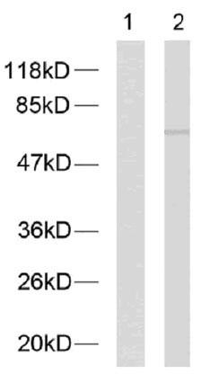 Western blot - Anti-NF-kB p65 (phospho T254) antibody (ab28810)