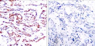 Immunohistochemistry (Paraffin-embedded sections) - ATF2 (phospho T53) antibody (ab28812)