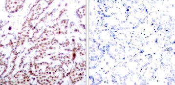 Immunohistochemistry (Paraffin-embedded sections) - ATF2 (phospho T73 or 55) antibody (ab28813)
