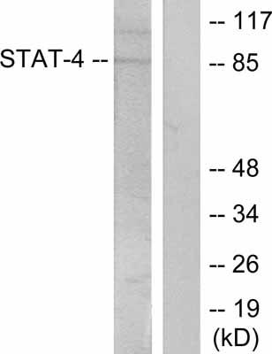 Western blot - STAT4 (phospho Y693) antibody (ab28815)