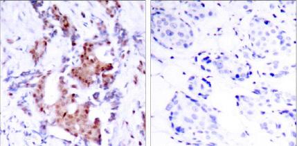Immunohistochemistry (Paraffin-embedded sections) - ELK1 (phospho T417) antibody (ab28817)