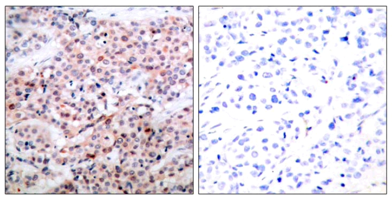Immunohistochemistry (Formalin/PFA-fixed paraffin-embedded sections) - Anti-Bcl-2 (phospho T56) antibody (ab28820)