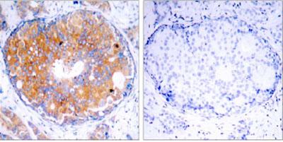 Immunohistochemistry (Paraffin-embedded sections) - MEK2 antibody (ab28834)