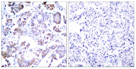 Immunohistochemistry (Formalin/PFA-fixed paraffin-embedded sections) - Anti-NF-kB p65 antibody (ab28835)