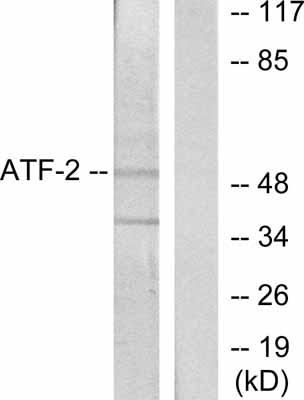 Western blot - ATF2 antibody (ab28836)