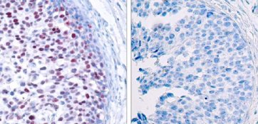 Immunohistochemistry (Paraffin-embedded sections) - c-Jun (phospho T239) antibody (ab28845)