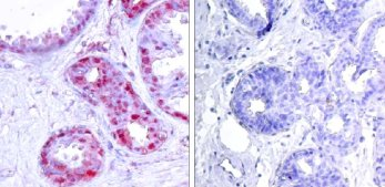 Immunohistochemistry (Paraffin-embedded sections) - c-Jun (phospho S243) antibody (ab28846)