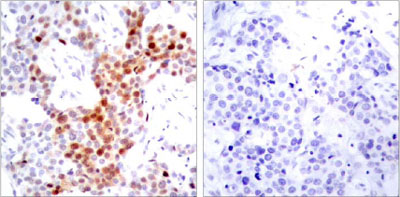 Immunohistochemistry (Paraffin-embedded sections) - ATF2 (phospho T69/51) antibody (ab28848)