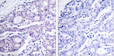 Immunohistochemistry (Paraffin-embedded sections) - p105 antibody (ab28850)