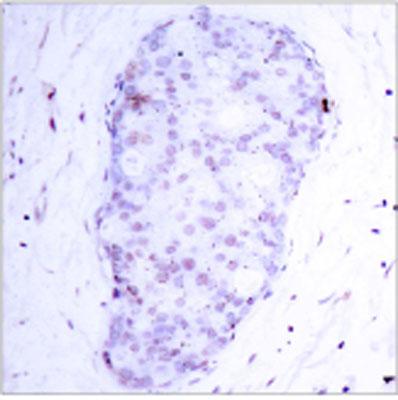 Immunohistochemistry (Paraffin-embedded sections) - NFkB p105/p50 (phospho S907) antibody (ab28851)